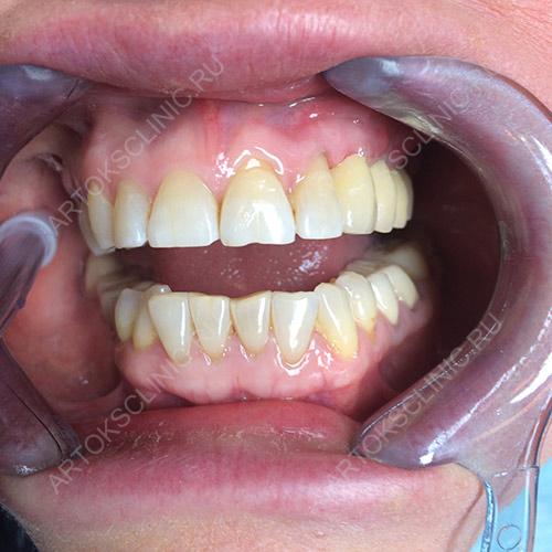Dentium імпланти