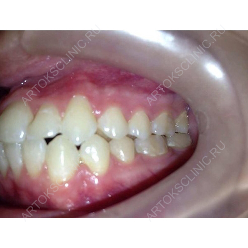 Техника реставрационного восстановления зуба