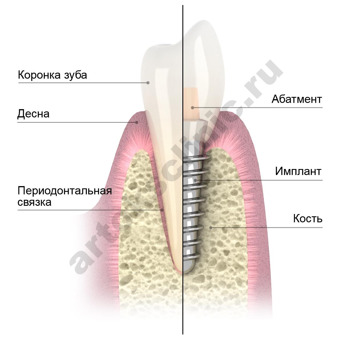 Схемы имплантации зубов