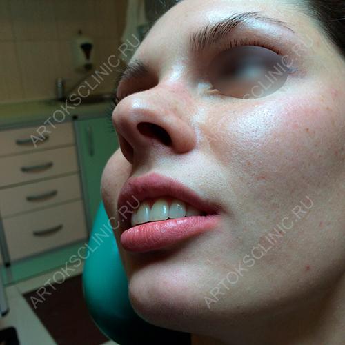 сколько стоят виниры на зубы в спб