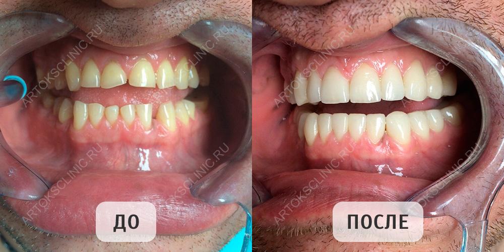 виниры передние зубы екатеринбург