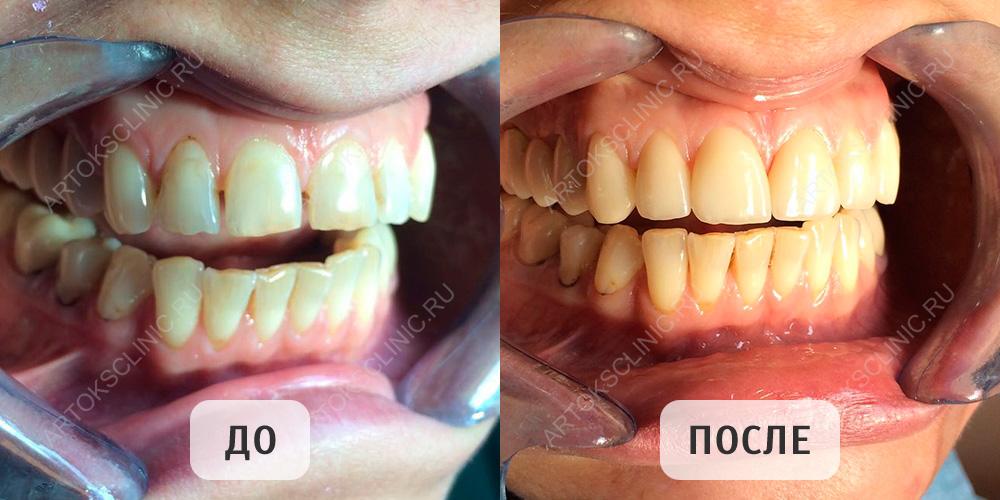 инновационные виниры для зубов perfect smile veneers
