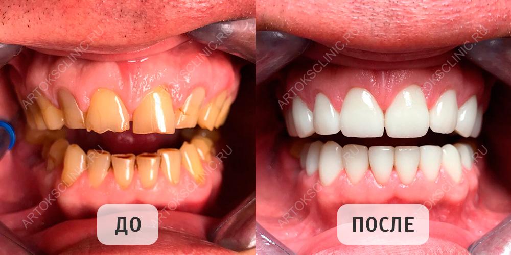 стоматология зубы виниры