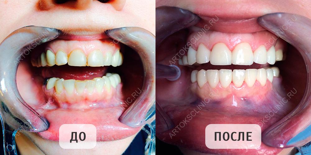 виниры на передние зубы цена в москве