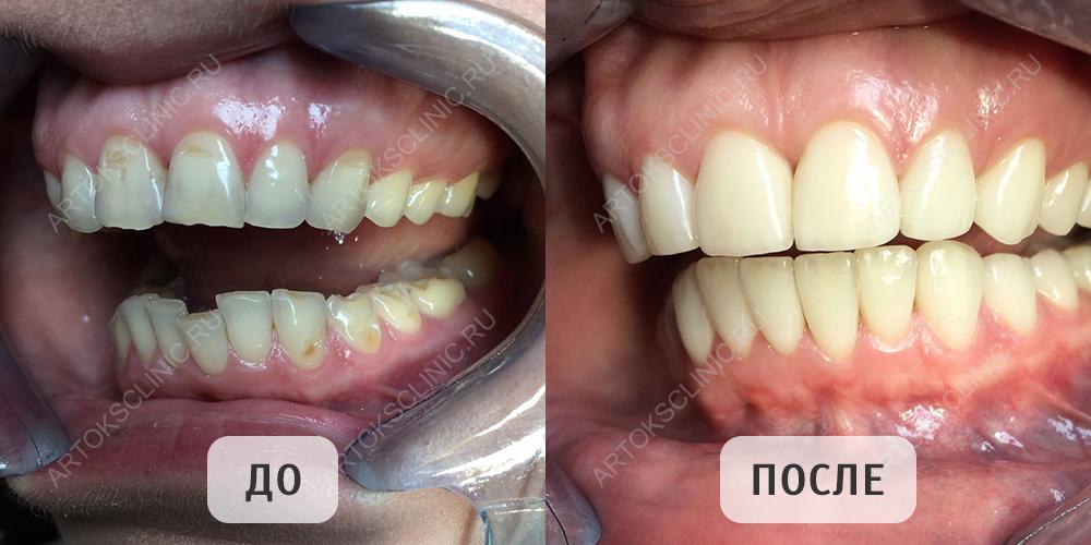 Художественная реставрация зубов – цены, фото до и после