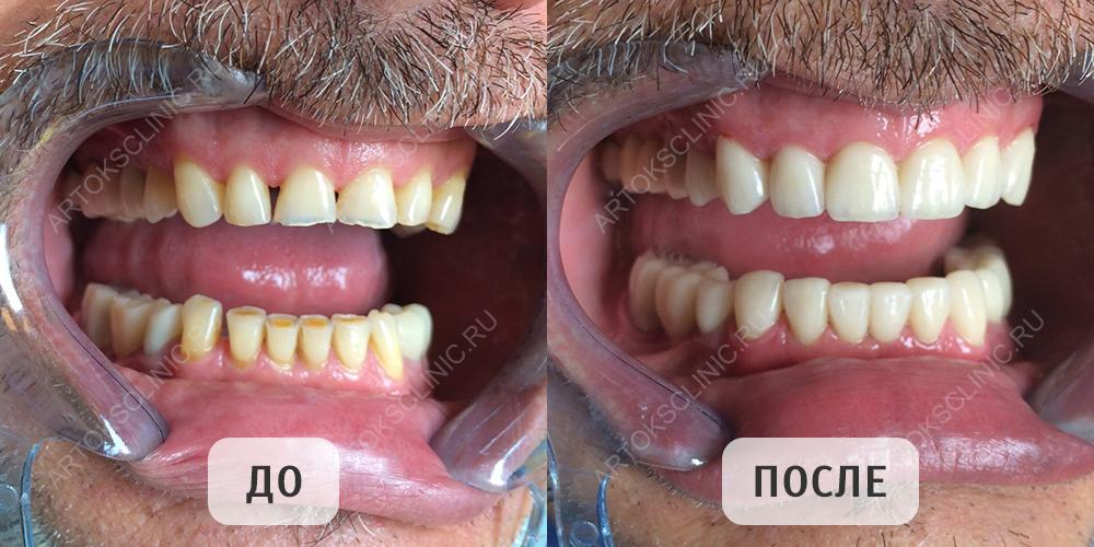 виниры цена на 1 зуб ростов