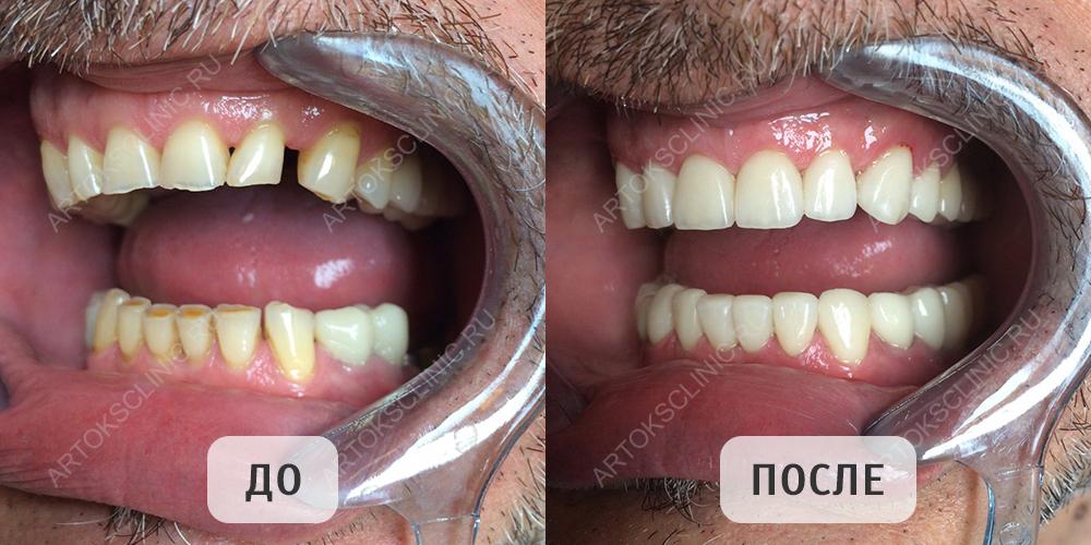 виниры на зубы цена в твери отзывы
