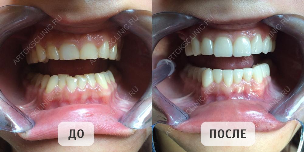 установка виниров фото до и после