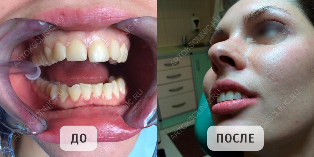 цена виниров на зубы