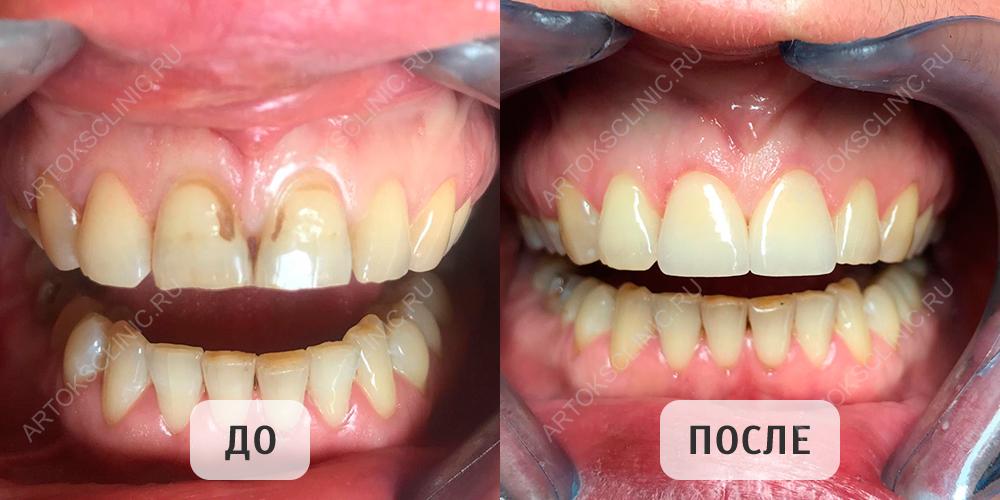 зубы после виниров фото