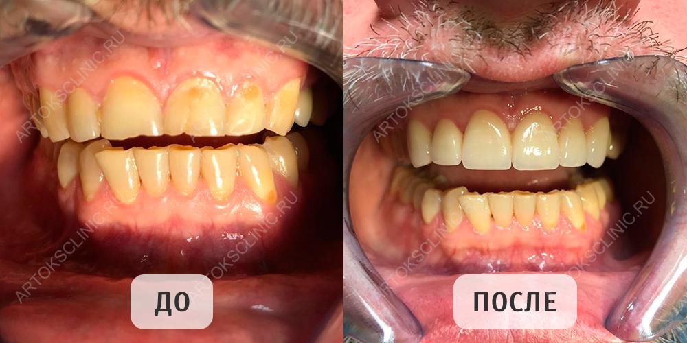 виниры на зубы верхние и нижние